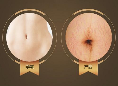 产前肌肤和产后肌肤对比